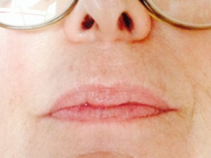 Lip lines after 4 weeks